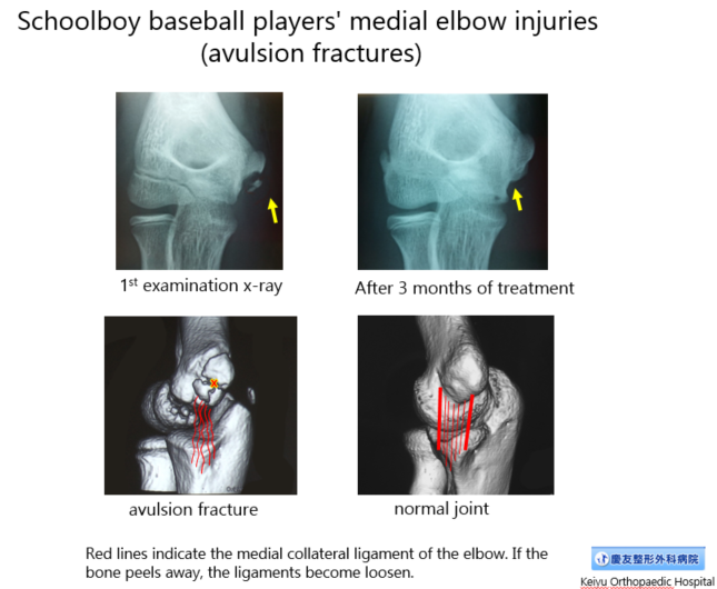 Avulsion fracture X-Rays
