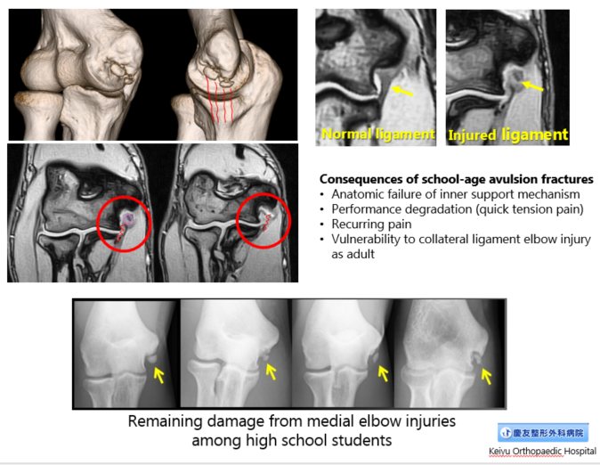 Injury consequences